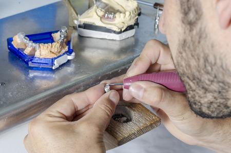 grinding teeth: Dental technician working.