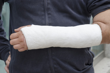 plaster: Man with his broken arm. Arm in cast, face not visible. Stock Photo