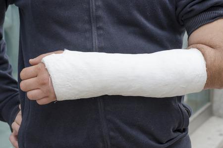 zbraně: Muž s jeho zlomenou ruku. Ruku v sádře, čelí není vidět.