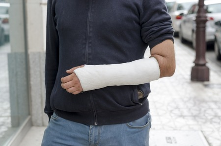 Man with his broken arm. Arm in cast, face not visible. Imagens