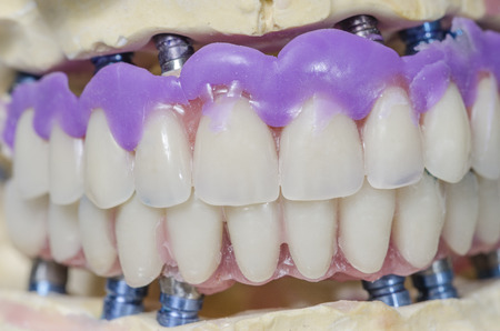 prosthesis: Closeup of dental prosthesis porcelain teeth in a mold.