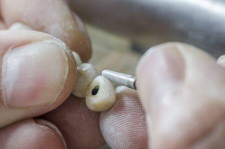 articulator: Dental technician is polishing a tooth model.