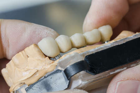 dental: A dentist  dental technician placing the fixed partial denture ( the dental bridge) on the implants.