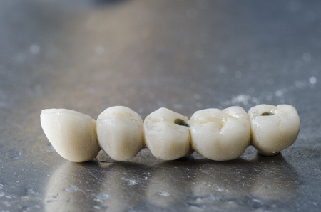 medical technical equipment: Dental porcelain bridge using the indirect method of restoration. Stock Photo