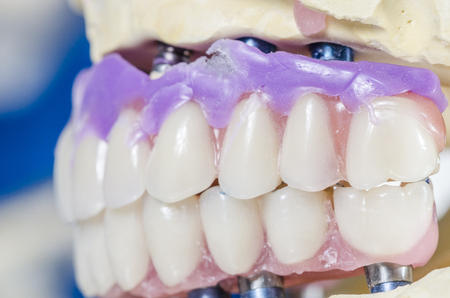prosthetic equipment: Perfil of dental prosthesis porcelain teeth in a mold.