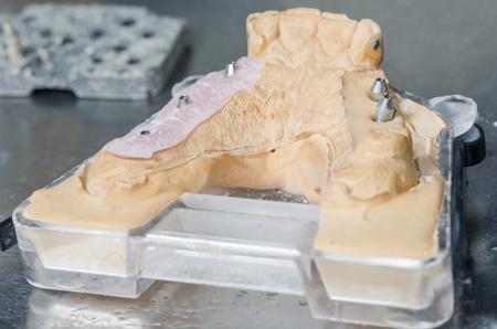 grinding teeth: Metal structure of a dental crown or bridge in the lab.