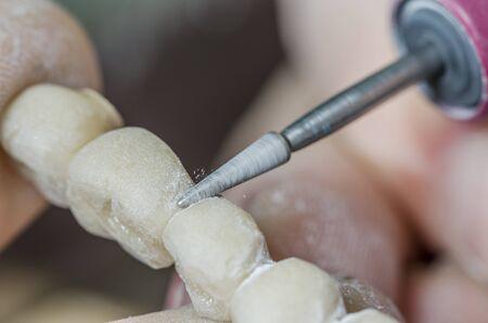 Dental technician is polishing a tooth model.
