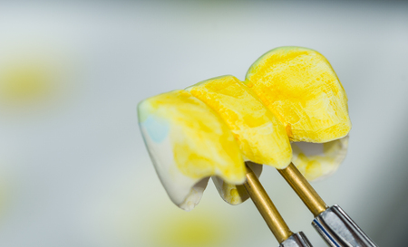 incisor: Dental technician is tinted the teeth made in zirconia before to be synthesised Stock Photo