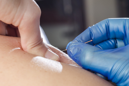 dry skin: Closeup of a needle and hands of physiotherapist doing a dry needling.
