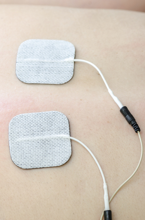 electrophoresis: TENS electrodes positioned for back pain treatment in physical therapy.