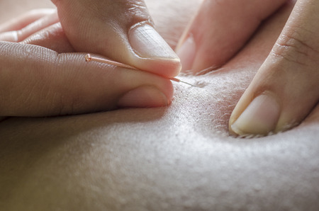 Physitoterapist  chiroprator haciendo un masaje de espalda. Osteopatía. Foto de archivo