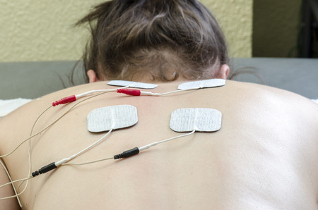 TENS electrodes positioned for back pain treatment in physical therapy.