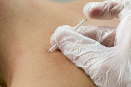 Closeup of a needle and hands of physiotherapist doing a dry needling.
