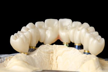 embedded: Monolithic zirconia restorations full arch implant supported with the ceramic load in vestibular, back background.