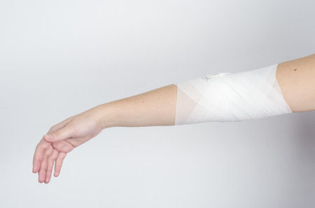 limbs: Compression bandage to inflammation, application of figure of eight bandage. Stock Photo