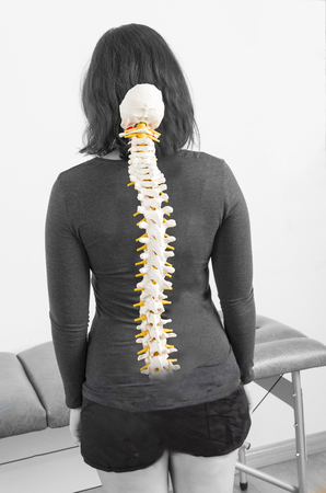 spinal disks: Patient with fake skeleton in her back. Stock Photo