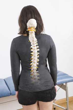 medulla: Patient with fake skeleton in her back. Stock Photo