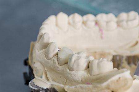 orthodontist: Hybrid ceramic crown in a dental cast model.