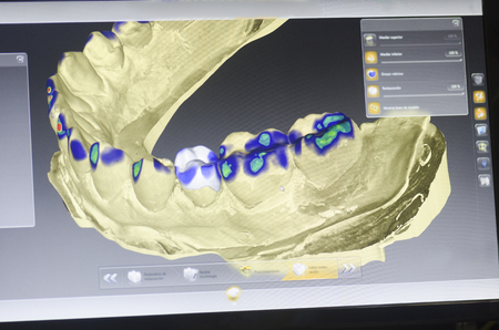 Dental technician is designing a dental crown with a computer.