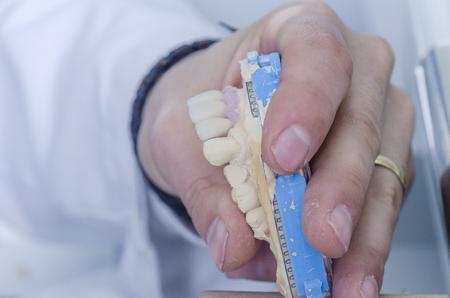 Dental technician working in a metal ceramic crowns.