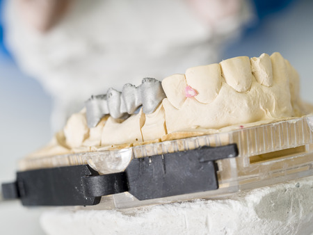 Dental technician is working with articulator in metal structure of a dental crown or bridge in dental laboratory.
