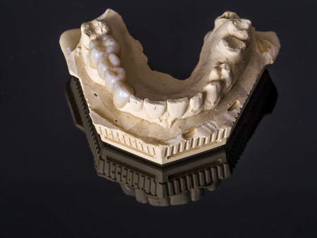 prosthodontics: Monolithic zirconia restorations  implant supported with the ceramic load in vestibular, back background Stock Photo