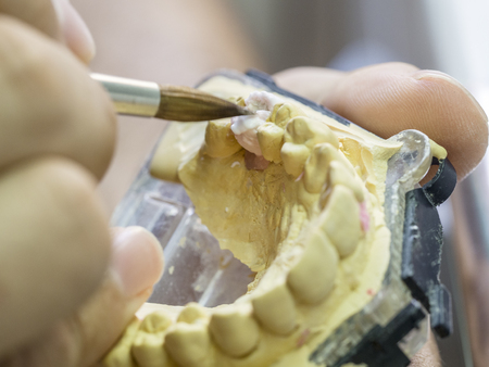 Closeup of dental technician applying ceramic to teeth, implant before putting into the furnace. Stock Photo