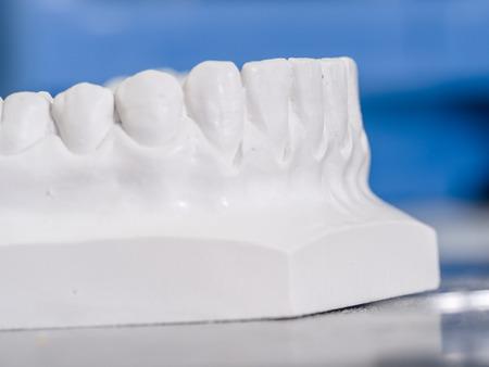 mastication: White mold dental of plaster. Stock Photo