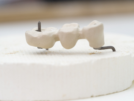 mplants teeth made in the technic Opaque porcelain dental. Oxidized metal opaque