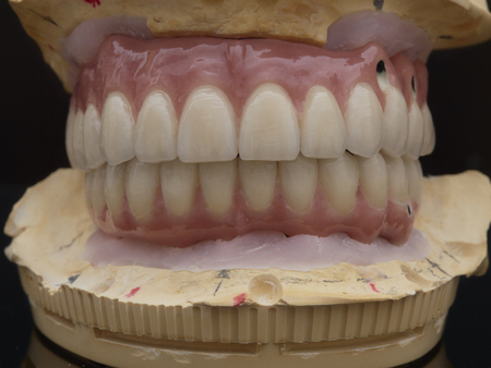 Complete lower and upper metal ceramic prosthesis dental screwed directly to implant. Фото со стока