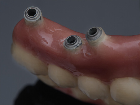 Complete prosthesis dental screwed over black mirror. Reflection Stock Photo
