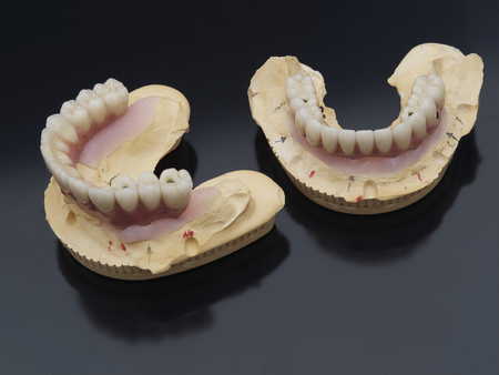 Complete lower and upper metal ceramic prosthesis dental screwed directly to implant. Stock Photo