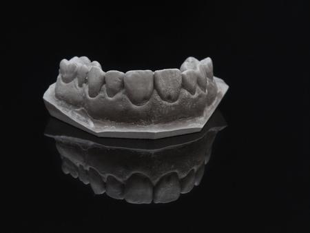 Gray plaster model dental over black glass. Jaw prothetic