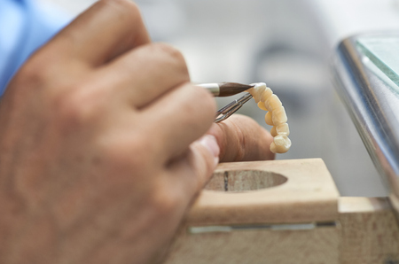 Closeup of dental technician putting ceramic to dental implants in his laboratory. Standard-Bild - 108444902