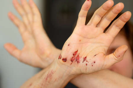 Wounds on the inside of the palm of an adult males right hand after removing the bandages. Close-up.