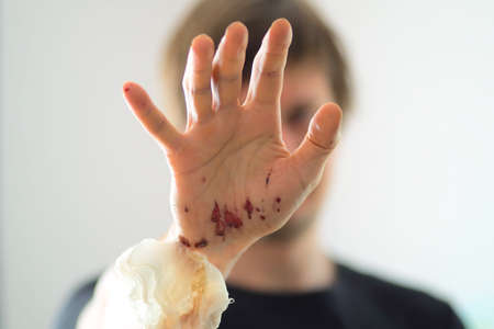 Abrasions on the palm and scratches on the right arm of an adult man. Home treatment. Removing bandages. Frontal view of the back of the hand. Close-up.
