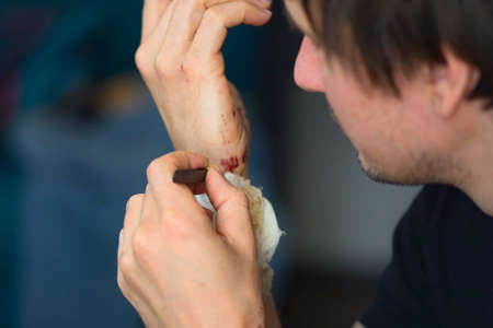 Abrasions on the palm and scratches on the right arm of an adult man. Home treatment. Self-removal of bandages using tweezers.