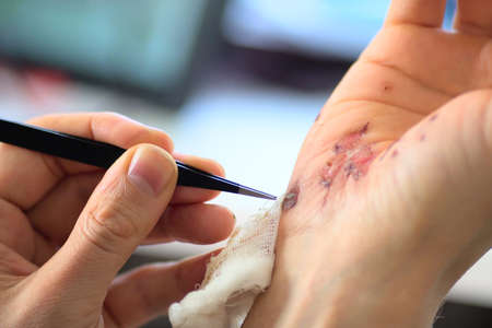 Abrasions on the palm and scratches on the right arm of an adult man. Home treatment. Self-removal of bandages using tweezers. Close-up. Imagens