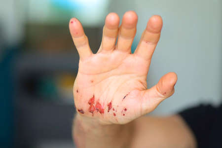 Abrasions on the palm and scratches on the right arm of an adult man. Home treatment. After removing the bandage. Close-up.
