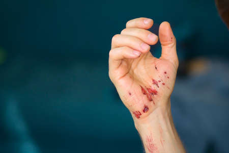 Abrasions on the palm and scratches on the right arm of an adult man. Home treatment. Imagens