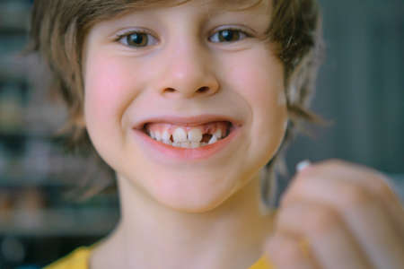 The childs milk tooth fell out. A satisfied boy holds a tooth in his hand. The hole is visible in the gum. Close-up.