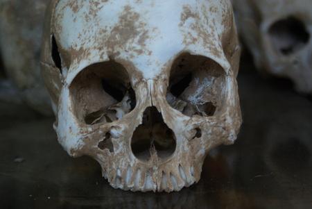 atrocity: skull