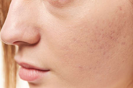 Acne on the girls face. Photo close-up
