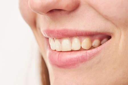 closeup of smile girl with white healthy teeth Stock Photo