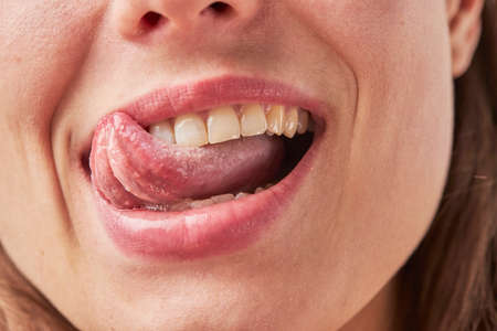 Beautiful young woman leaking teeth with tongue close-up