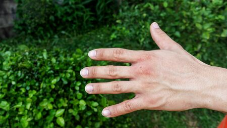 Men were bitten by an insect.
