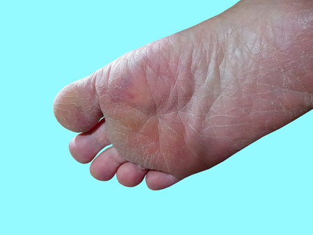 Close-up Cracked Foot Skin Isolated on Cyan Background