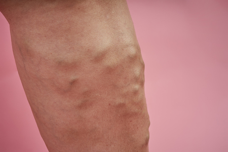 Leg of senior woman with varicose veins on coral background. Stock Photo