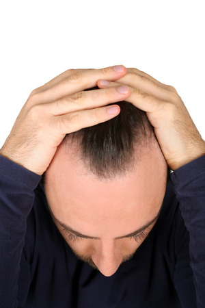 dermatologist: Caucasian young man controls hair loss Stock Photo