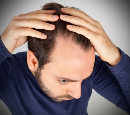 Caucasian young man controls hair loss Stock Photo